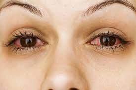 Oculax – bolji vid - instrukcije – sastojci – gel